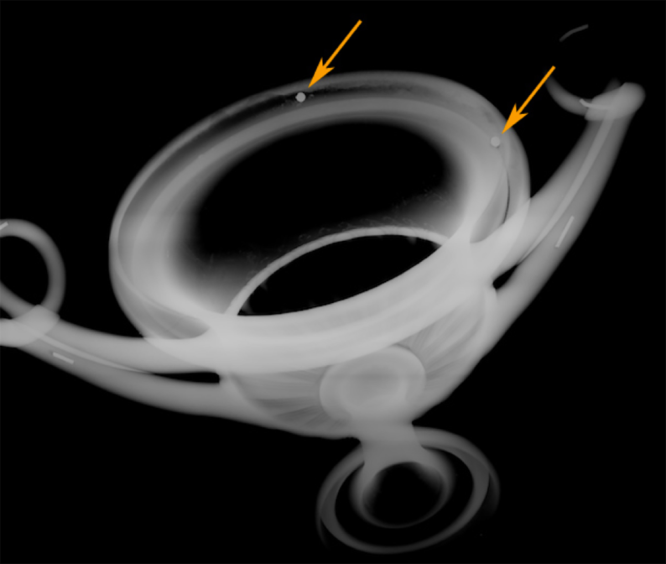 In the X-ray of the rattling kantharos, two small, opaque gray circles show in the rim of the cup.
