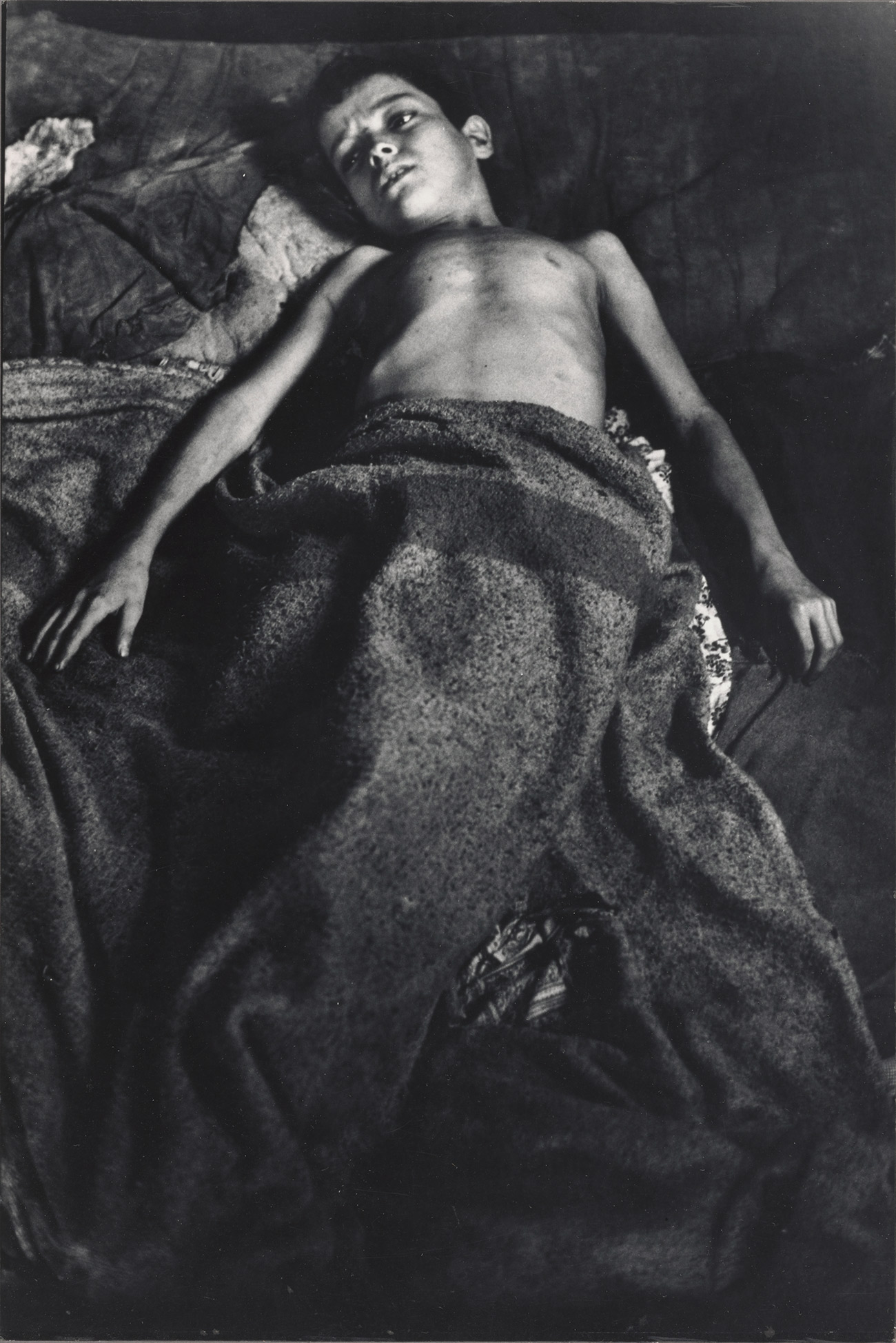 Black and white photograph of a thin boy lying on a bed or cot, with a blanket pulled up to his waist.